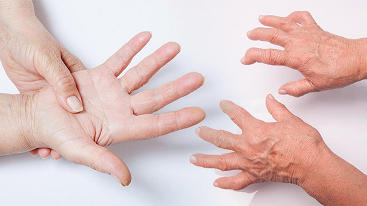 Apa itu OA (osteoarthritis, pengapuran sendi)?
