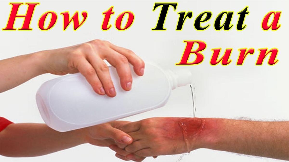 cara_mengobati_luka_bakar_secara_alami
